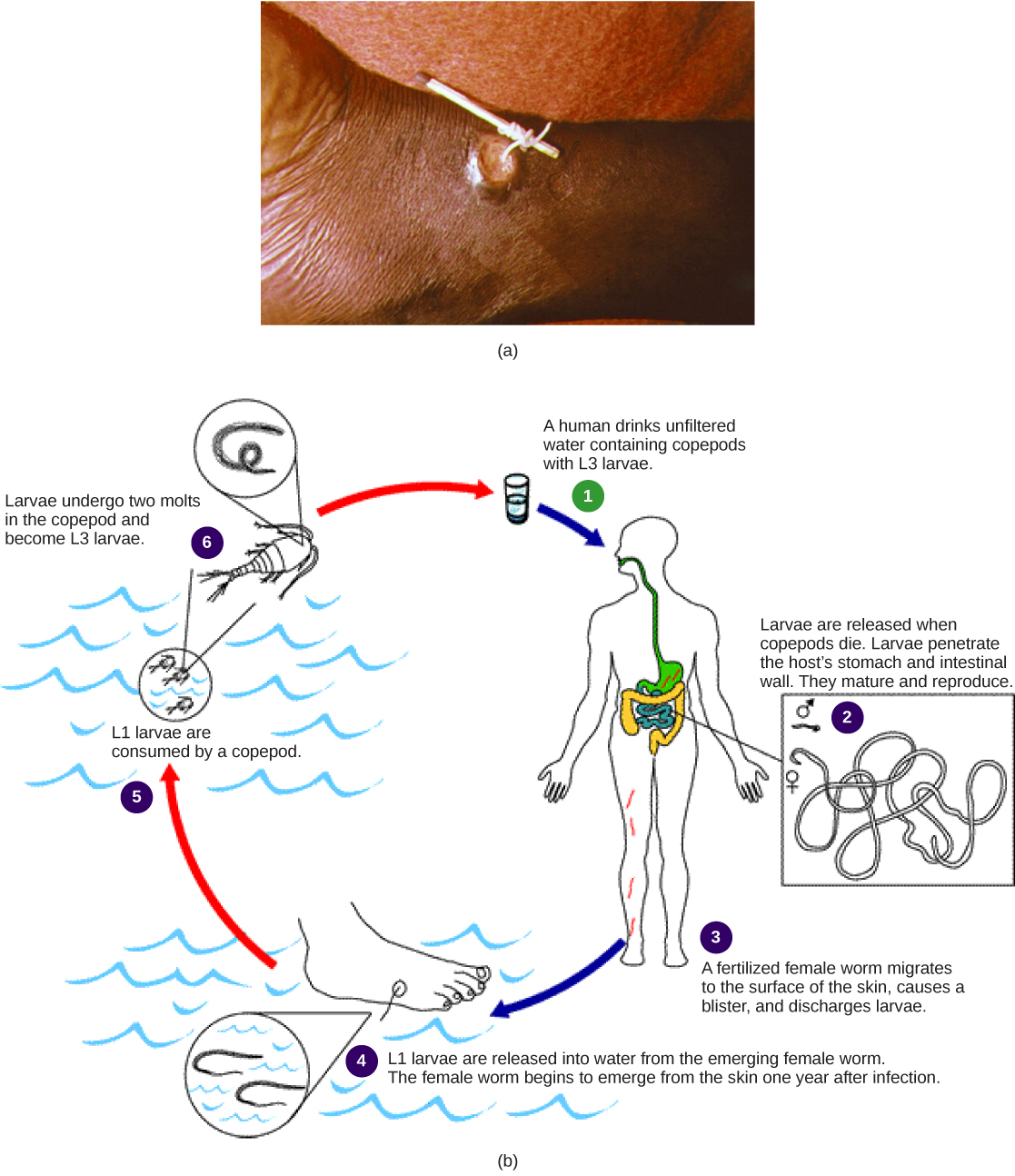 Part A shows a foot with a guinea worm extending from a blister. The end of the worm is wrapped around a stick. Part B shows the life cycle of the guinea worm, which begins when a person drinks unfiltered water containing copepods infected with guinea worm larvae. Larvae, which are released when the copepods die, penetrate the wall of the stomach and intestine. The worms mature and reproduce. Fertilized females migrate to the surface of the skin, where they discharge larvae into the water. Copepods consume the larvae. The copepods are consumed by humans, completing the cycle. About a year after infection, the female worm emerges from the skin.