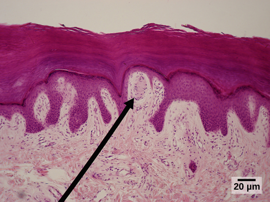Micrograph shows the epidermis, which stains dark pink and the dermis, which stains light pink. Finger-like projections of epidermis extend into the dermis. Between two of these fingers is an oval Meissner corpuscle about ten microns across and 20 microns long.