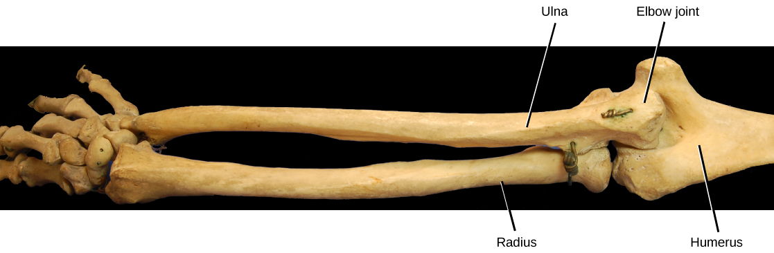 Photo shows the skeleton of a human arm. The ulna of the lower arm fits in the groove of the humerus, forming the hinge-like elbow joint.