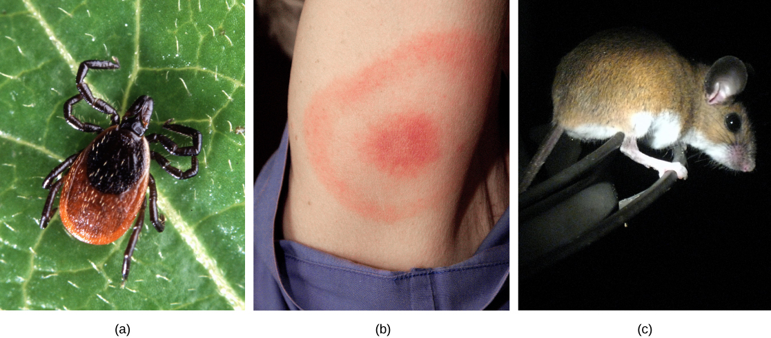 Photo (a) shows a deer tick on a leaf. The tick has a brown oval body with a smaller, round oval toward the front. The head and legs are black. Photo (b) shows an arm with a red, circular rash enclosed in a ring-like rash. Photo (c) shows a brown mouse with a white belly and legs and large, round ears.