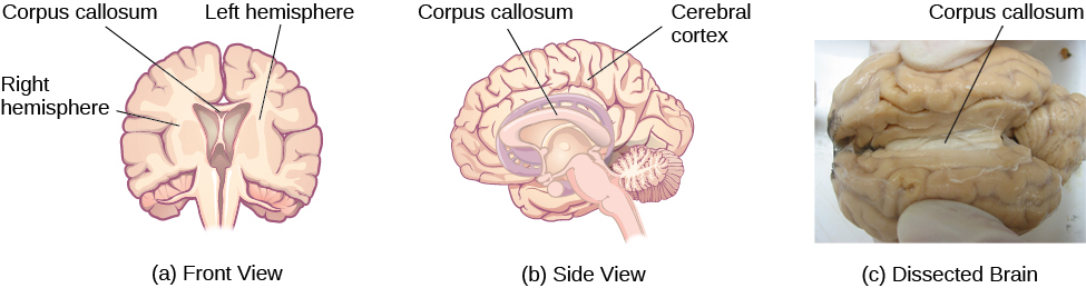Illustrations (a) and (b) show the corpus callosum's location in the brain in front and side views. Photograph (c) shows the corpus callosum in a dissected brain.