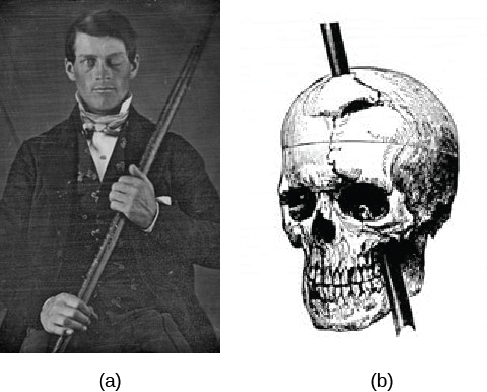 Image (a) is a photograph of Phineas Gage holding a metal rod. Image (b) is an illustration of a skull with a metal rod passing through it from the cheek area to the top of the skull.