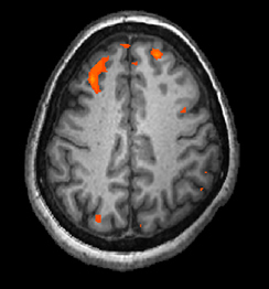 A brain scan shows brain tissue in gray with some small areas highlighted red.