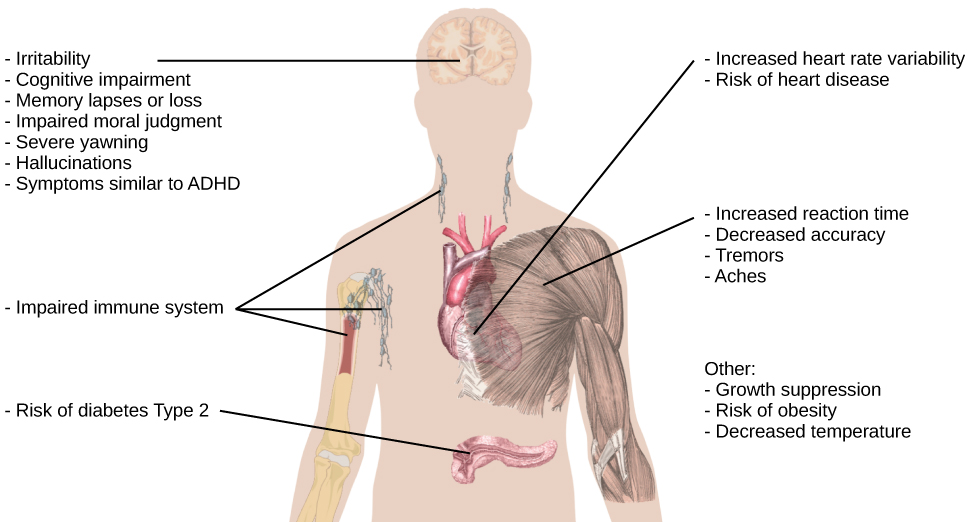 "An illustration of the top half of a human body identifies the locations in the body that correspond with various adverse affects of sleep deprivation. The brain is labeled with Irritability,"" ""Cognitive impairment,"" ""Memory lapses or loss,"" ""Impaired moral judgement,"" ""Severe yawning,"" ""Hallucinations,"" and ""Symptoms similar to ADHD."" The heart is labeled with Increased heart rate variability and Risk of heart disease. The muscles are labeled with Increased reaction time, Decreased accuracy, Tremors, and Aches. There is an organ near the stomach labeled Risk of diabetes Type 2. Other risks include Growth suppression, Risk of obesity, Decreased temperature, and Impaired immune system."