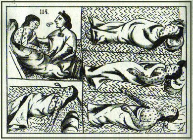 A drawing shows five depictions of an Aztec smallpox victim. The victim, who is covered with spots, is shown sleeping, vomiting, and being examined by a healer.