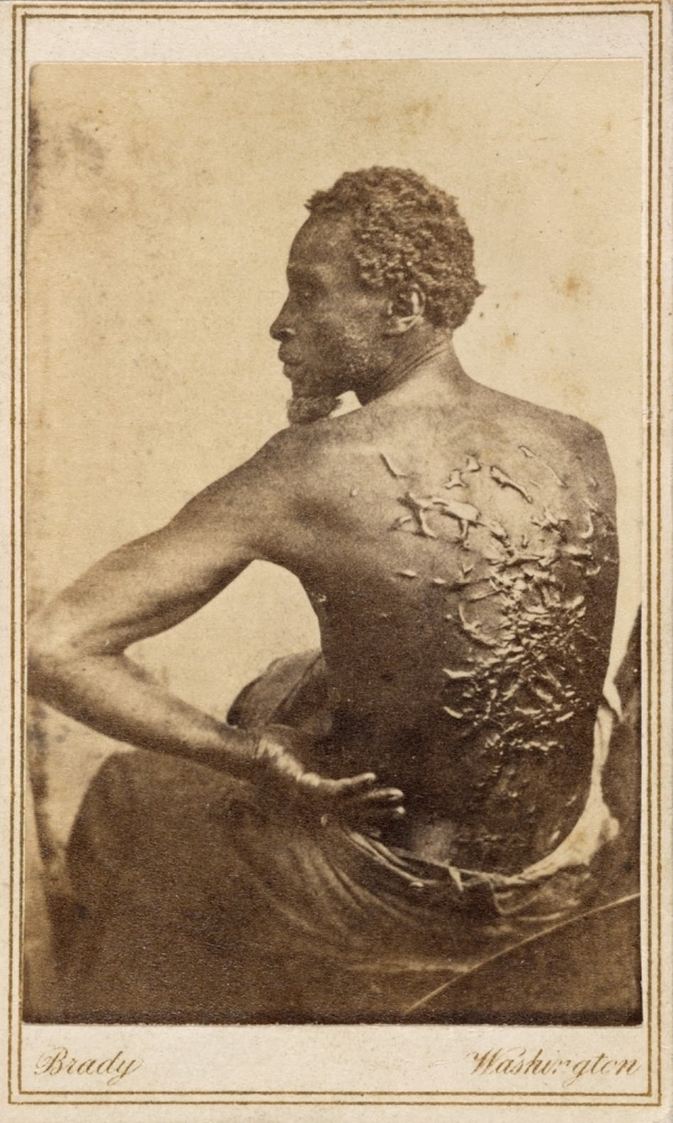 Mathew Brady photo of Gordon, a whipped and scarred slave