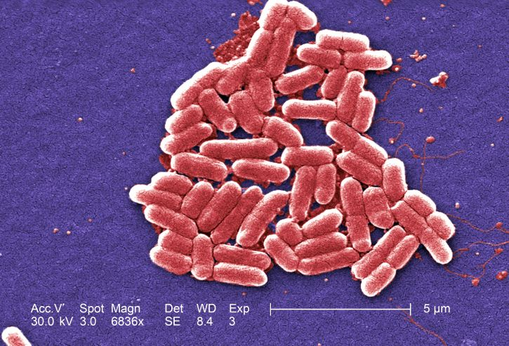 Figure 1.3. Escherichia coli (E. coli) bacteria, seen in this scanning electron micrograph, are normal residents of our digestive tracts that aid in the absorption of vitamin K and other nutrients. However, virulent strains are sometimes responsible for disease outbreaks.