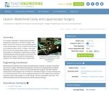Abdominal Cavity and Laparoscopic Surgery