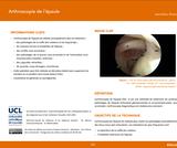 OER-UCLouvain: Arthroscopie de l'épaule