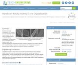 Kidney Stone Crystallization