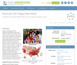 Floppy Heart Valves