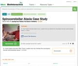 Spinocerebellar Ataxia Case Study
