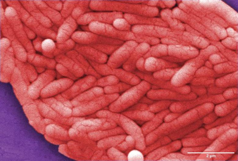 Bacterial Diseases in Humans